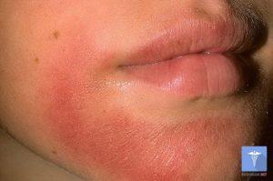 Осложнения контактного дерматита