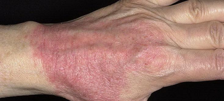 Атопичекий дерматит на руке