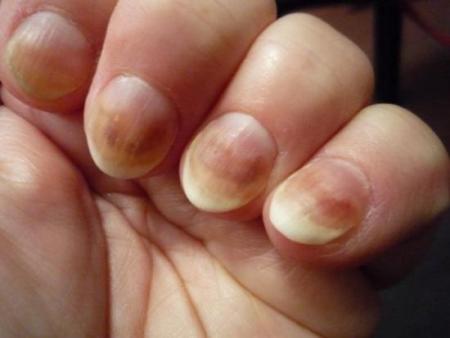 Нитчатый грибок на ногтях