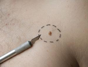 Удаление рака кожи
