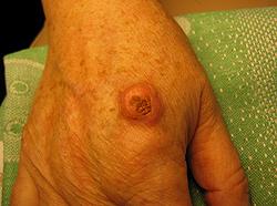 Меланома на руке