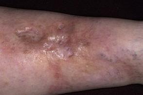 Некробиоз на руке