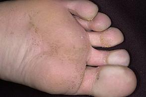 Мелкоклеточный кератолиз на ноге