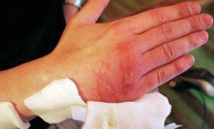 Ожог от борщевика на руке