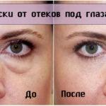 Противоотечные маски для области вокруг глаз
