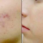 Пятна от прыщей на лице лечение