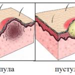 Угревая сыпь на спине причины и лечение