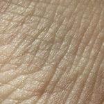 Как выглядят морщины на лице