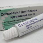 Почему в аптеках нет солкосерила