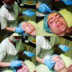 Реабилитация после ретиноевого пилинга