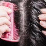 Сухость кожи головы и зуд лечение