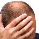 Прыщи на голове в волосах у мужчин