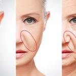Удаление носогубных складок гиалуроновой кислотой