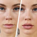 Косметические процедуры для губ