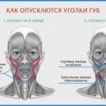 Причины появления морщин на лице