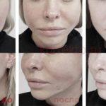 Реабилитация после мезонитей на лице