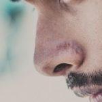 Угри на носу причины у мужчин