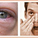 Почему синяки под глазами у мужчин причина