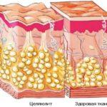 Как быстро можно избавиться от целлюлита