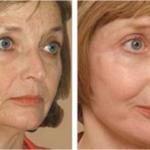 Фракционное лазерное омоложение кожи лица отзывы фото