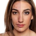 Надавила лицо как быстро снять покраснения