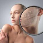 Химический пилинг для лица плюсы и минусы