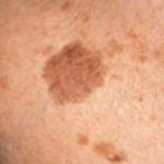 Появилось пятно на коже коричневое на руке