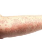 Крапивница симптом каких заболеваний