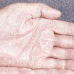 Почему сухие ладони рук