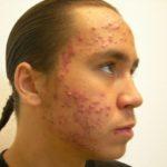 Косметические процедуры для проблемной кожи