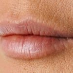 Морщины между губой и носом