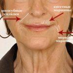 Мимические морщины вокруг губ