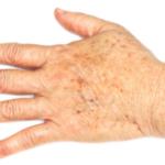 Как лечить пигментные пятна на руках