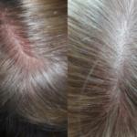 Раздражение кожи головы зуд