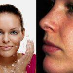 Эффективное средство от черных точек на лице