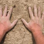 Руки сухие и шершавые что делать