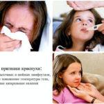 Болезнь краснуха лечение симптомы диагностика