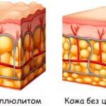 Схема массажа щеткой от целлюлита