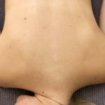Сухая кожа на спине