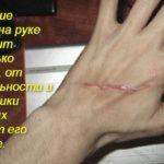 Красные шрамы от порезов