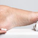 Почему сохнет кожа на ступнях ног