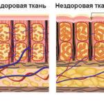 Антицеллюлитный массаж до и после 10 сеансов