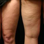 Антицеллюлитный массаж для похудения живота