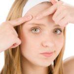 Угревая сыпь на теле у взрослого