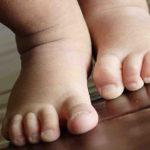 Почему у ребенка шершавая кожа на ногах