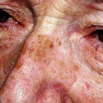 Как избавиться от возрастной пигментации на лице