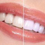 Методы отбеливания зубов в медучреждении